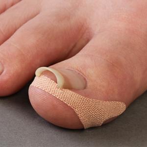 巻き爪テープ クイこまーぬ 60枚入 巻き爪サポーター 巻き爪ワイヤー 巻爪矯正 巻き爪保護グッズ メール便