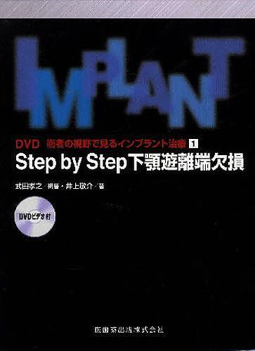 Step by Step 下顎遊離端欠損【1000円以上送料無料】