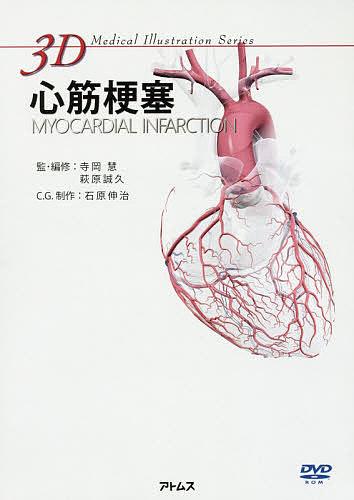 心筋梗塞/寺岡慧/・編修萩原誠久【1000円以上送料無料】