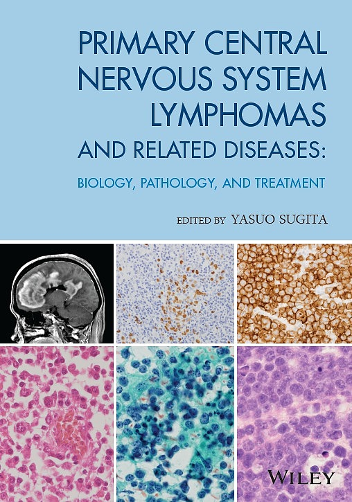 PRIMARY CENTRAL NERVOUS SYSTEM LYMPHOMAS AND RELATED DISEASES BIOLOGY,PATHOLOGY,AND TREATMENT/YasuoSugita【1000円以上送料無料】