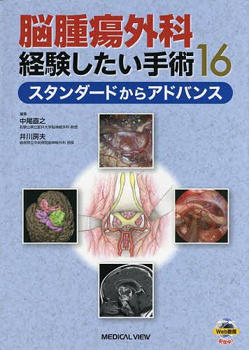 脳腫瘍外科経験したい手術16 スタンダードからアドバンス/中尾直之/井川房夫【1000円以上送料無料】