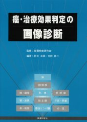 癌・治療効果判定の画像診断/田中良明