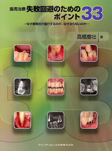 【100円クーポン配布中!】歯周治療失敗回避のためのポイント33 なぜ歯周炎が進行するのか、なぜ治らないのか/高橋慶壮