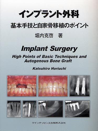 【100円クーポン配布中!】インプラント外科基本手技と自家骨移植のポイント
