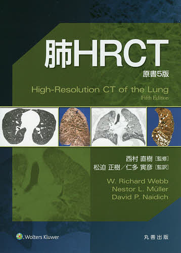 【100円クーポン配布中!】肺HRCT/W.RichardWebb/NestorL.Muller/DavidP.Naidich