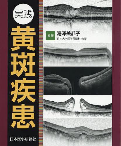 実践黄斑疾患/湯澤美都子