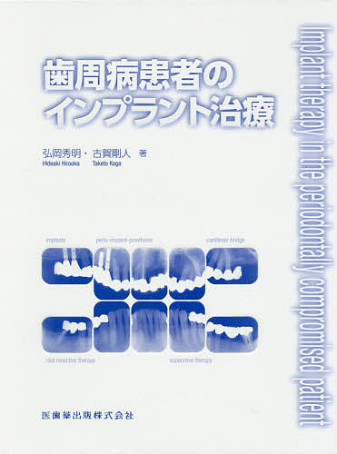 【100円クーポン配布中!】歯周病患者のインプラント治療/弘岡秀明/古賀剛人