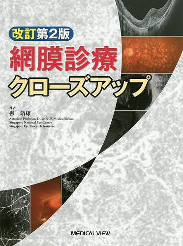 【100円クーポン配布中!】網膜診療クローズアップ/柳靖雄
