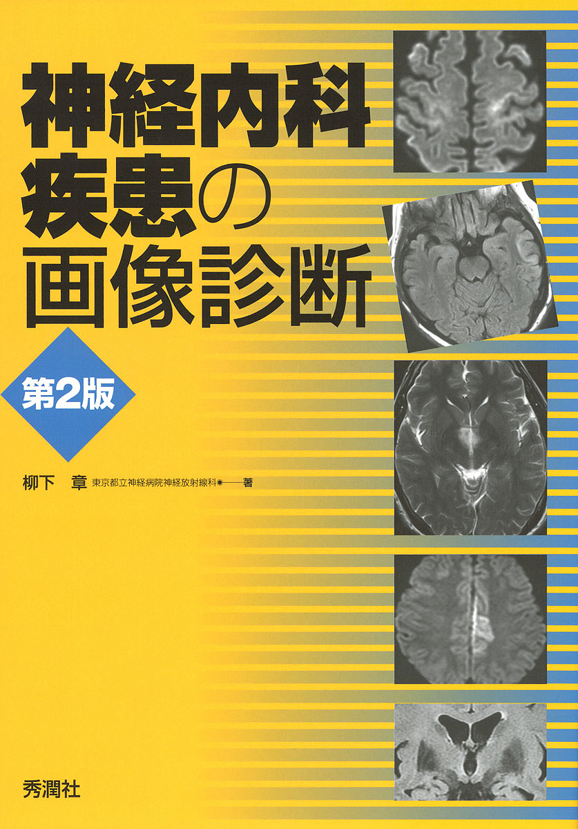 神経内科疾患の画像診断/柳下章【合計3000円以上で送料無料】