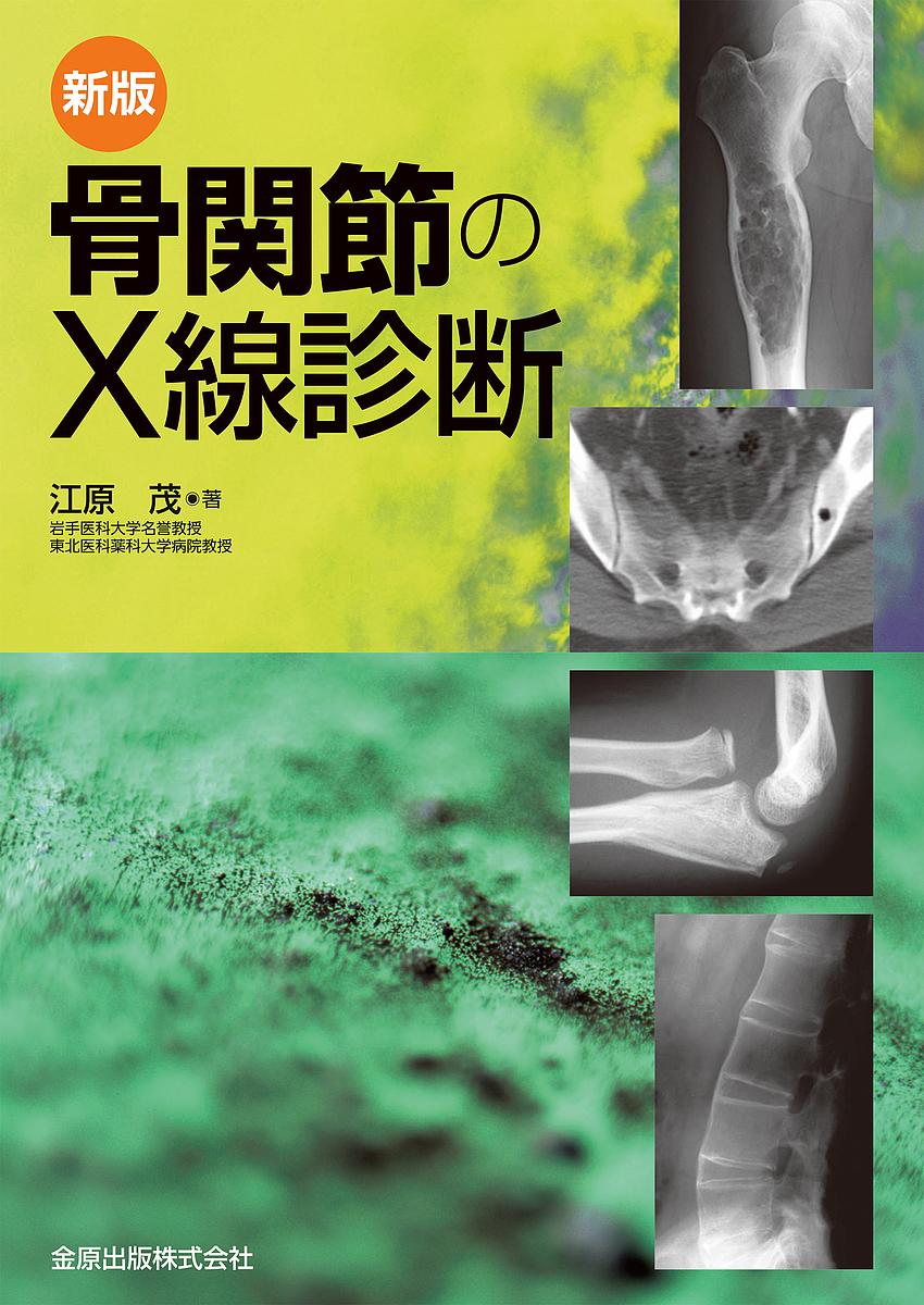 骨関節のX線診断/江原茂【合計3000円以上で送料無料】