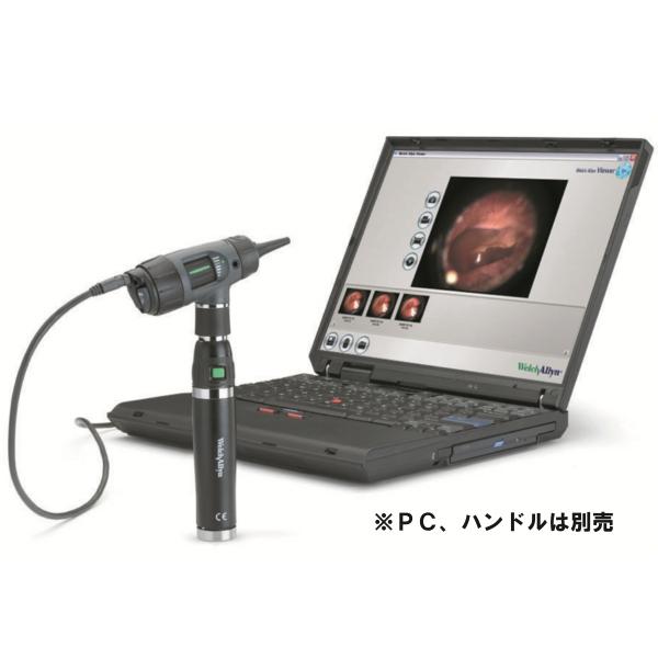 [ウェルチアレン] デジタルマクロビュー 耳鏡ヘッド(ハンドルは別売) 23920 Welch Allyn