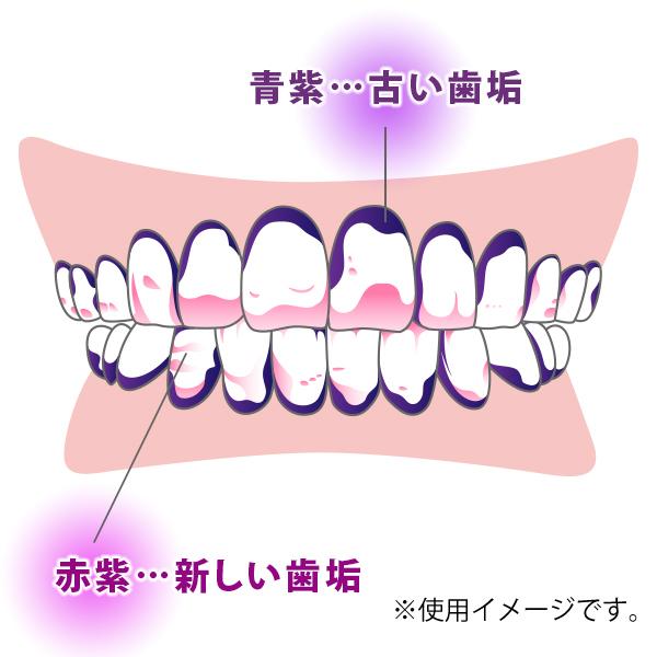 Ci双瓷花金属板查对者(牙垢染色剂)1(50ml)部葡萄滋味