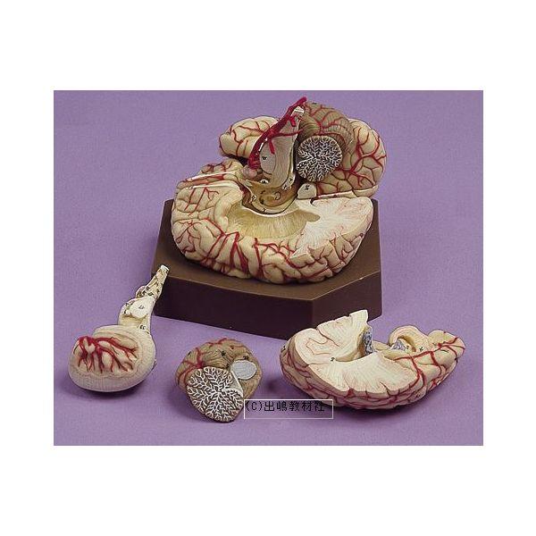 脳の動脈模型