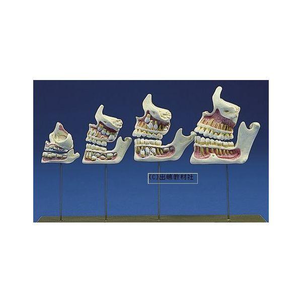 歯列の発育模型