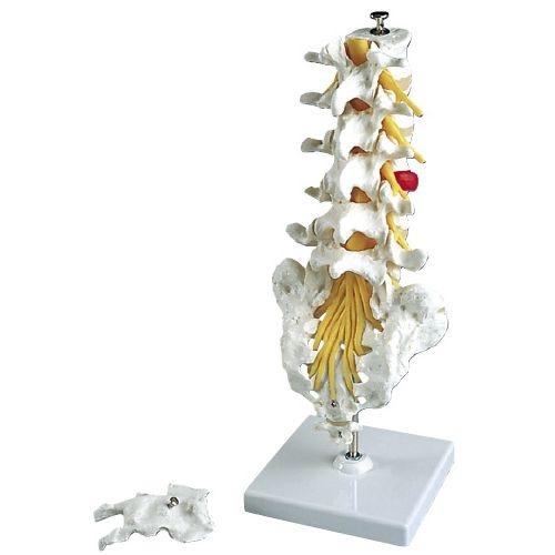 その他 京都科学 腰椎モデルヘルニア付(スタンド付) A76/5 (34cm) CMD-00213481【納期目安:1週間】