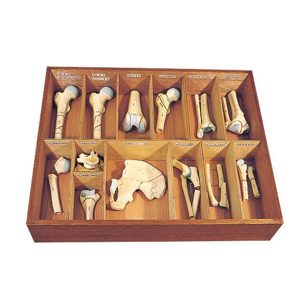 骨折種類模型 〔13種〕 実物大 木製ケース付き M-131-0【代引不可】【北海道・沖縄・離島配送不可】