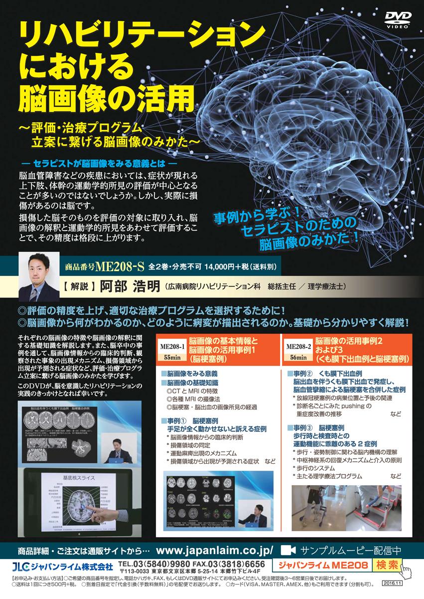 リハビリテーションにおける脳画像の活用~評価・治療プログラム立案に繋げる脳画像のみかた~[理学療法 ME208-S 全2巻]