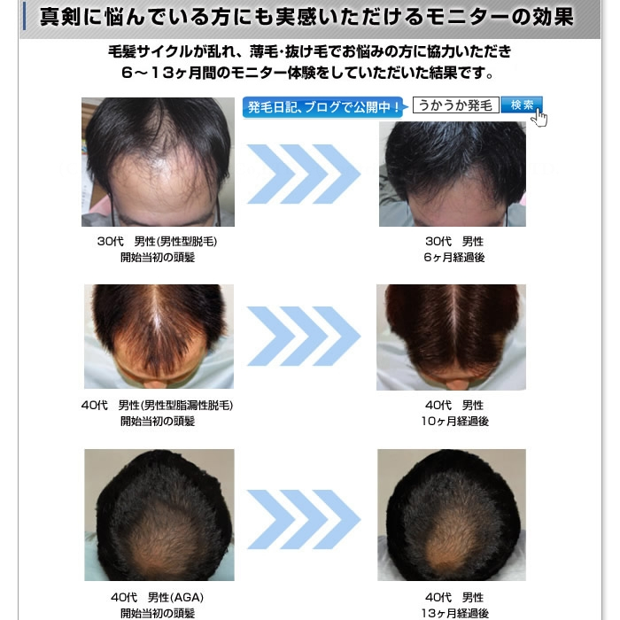 Medicated shampoos from hair enhancement! GOPHA ゴーファ medicated scalp shampoo 300 mL * hair growth agents reap scalp D success Kanna like Lou hair loss prevention fs3gm