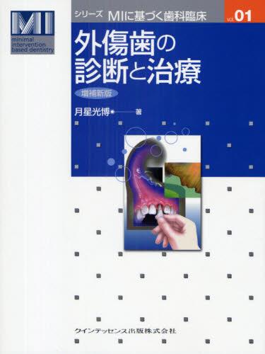 外傷歯の診断と治療