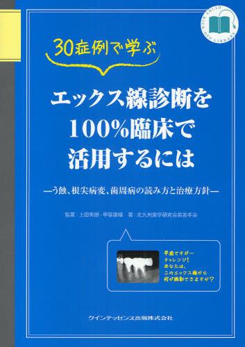 30症例で学ぶエックス線診断を100%臨床で活用するには う蝕、根尖病変、歯周病の読み方と治療方針