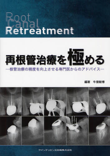 再根管治療を極める 根管治療の精度を向上させる専門医からのアドバイス