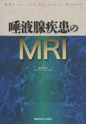 唾液腺疾患のMRI