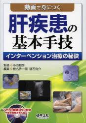 動画で身につく肝疾患の基本手技 インターベンション治療の秘訣
