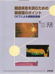 眼底疾患を読むための眼病理のポイント OCTによる網膜断層像