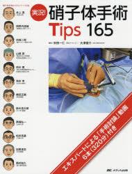 実況!硝子体手術Tips 165
