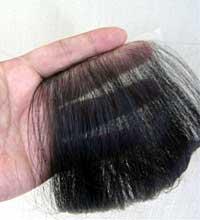 キズあと、ヤケドあとなどへの髪介護「ヘアーラップ」