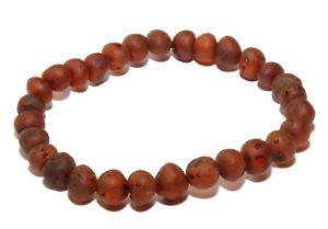 【送料無料】ブレスレット アクセサリ― オレンジココアコニャックバルトストレッチブレスレットlove amber x genuine adult cocoa raw cognac baltic amber stretch bracelet uk