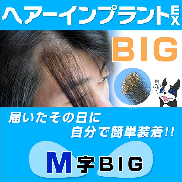 メンズウィッグとは違う選択肢 激安通販ショッピング 使い勝手の良い ヘアーインプラントEX M字用BIG ※強力テープ貼り付け済み 男性用かつら