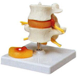 ☆椎間板ヘルニア模型A76(SR-317)