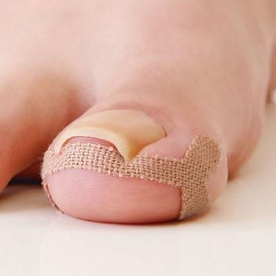お中元 貼るだけ簡単 ランキングTOP10 巻き爪をサポート テープで食い込みを押し下げて巻き爪をケア 巻き爪ケアテープ 爪 治療 指 テーピング 痛み 治す 通販 足 痛い 矯正 変形