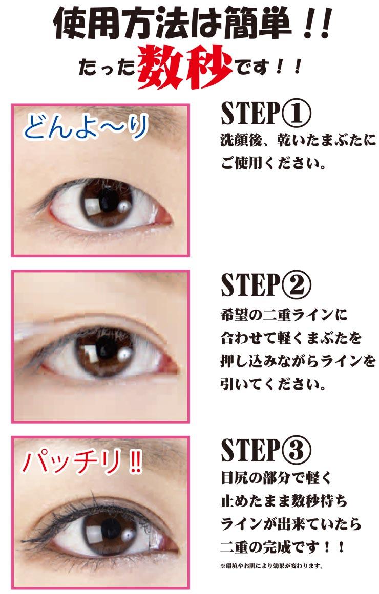 下垂 アイプチ 眼瞼