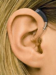 ★送料手数料無料★ジーエヌリサウンドメトリックスBTE(耳かけ型)<軽度~中・高度>MX60-D-MBLミディアムブロンド<指向性A>片耳【こちらの商品は、税込と記載しておりますが非課税商品です】