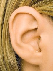 ジーエヌリサウンドピクセルCIC(超小型耳穴型)<軽度~中等度>PL10-B 片耳【こちらの商品は、税込と記載しておりますが非課税商品です】