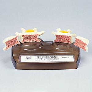 骨粗しょう症模型(SR-326)【smtb-s】