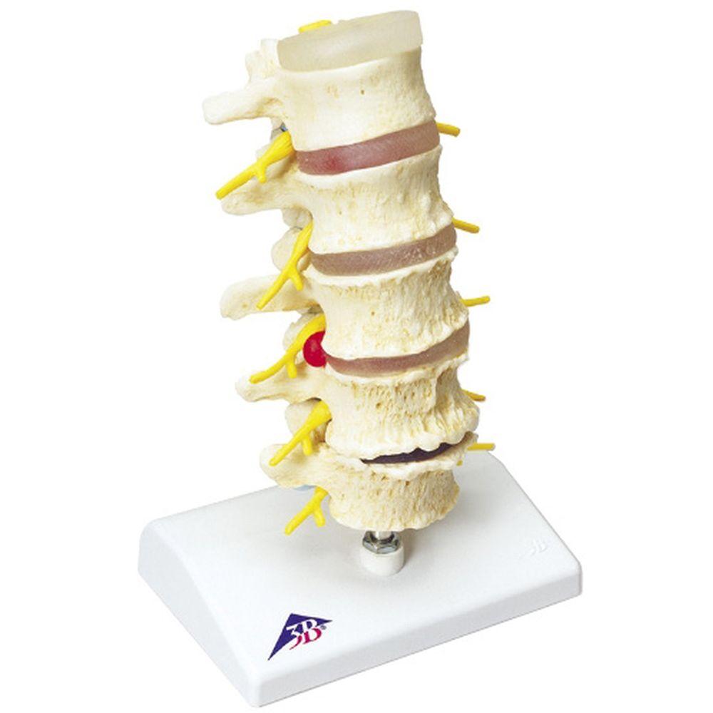 椎間板ヘルニアと変形性脊椎症モデル A795 1台 日本スリービー・サイエンティフィック 11-2825-00