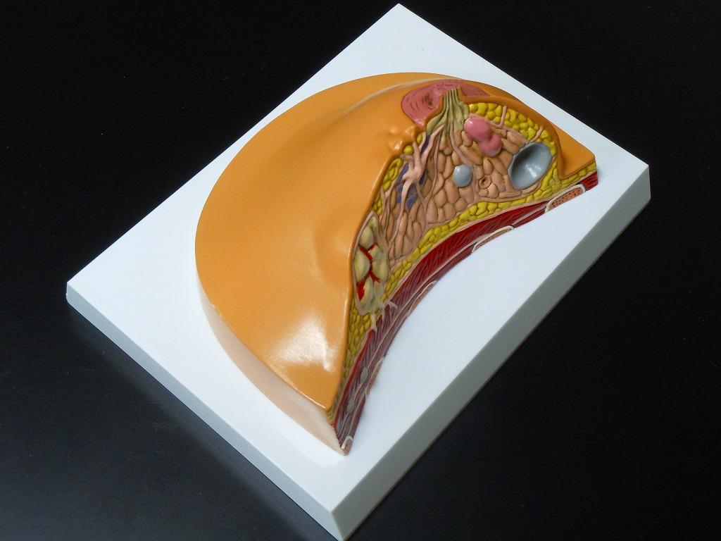 【送料無料】 人体模型 乳房 病変模型 腺癌 腺管癌 硬癌 繊維腺腫 嚢胞