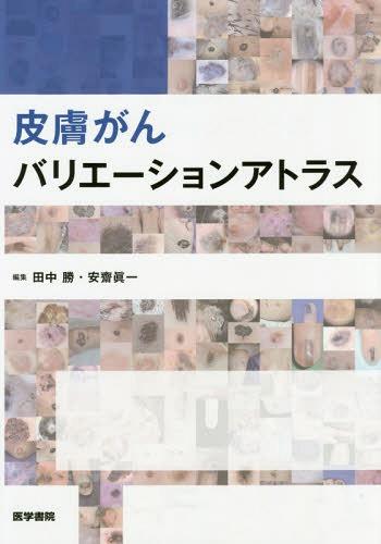 皮膚がんバリエーションアトラス[本/雑誌] / 田中勝/編集 安齋眞一/編集