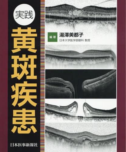 実践黄斑疾患[本/雑誌] / 湯澤美都子/編著