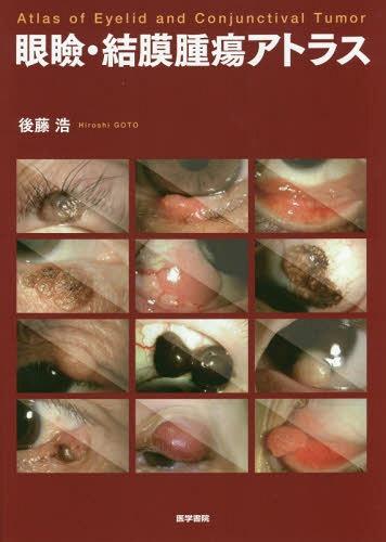 【メール便利用不可】 眼瞼・結膜腫瘍アトラス[本/雑誌] / 後藤浩/著