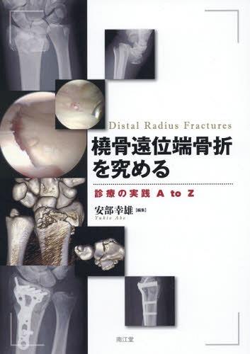 橈骨遠位端骨折を究める 診療の実践A to Z[本/雑誌] / 安部幸雄/編集