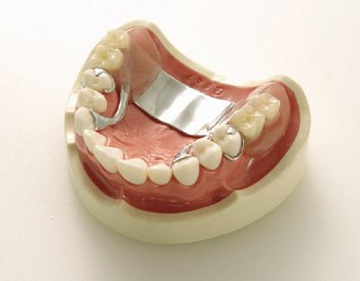 義歯デモンストレーションモデル(上顎)