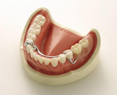 《坂本モデル》義歯デモンストレーションモデル(下顎)