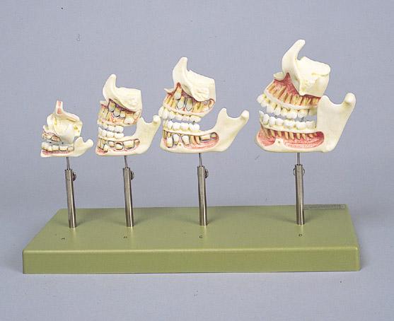 歯の発育模型