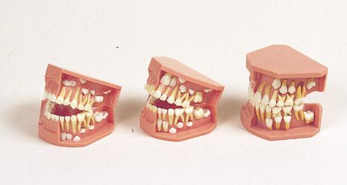 《坂本モデル》歯列発育模型