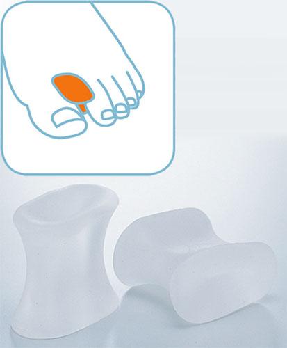 ついに再販開始 外反母趾による足指間の圧迫と摩擦を和らげ 重なる足指の矯正を助けます 外反母趾サポーター セラステップ 6207 ゲルトゥスプレッダー 1セット 2個入 2セットまでネコポス対応可能 ☆国内最安値に挑戦☆