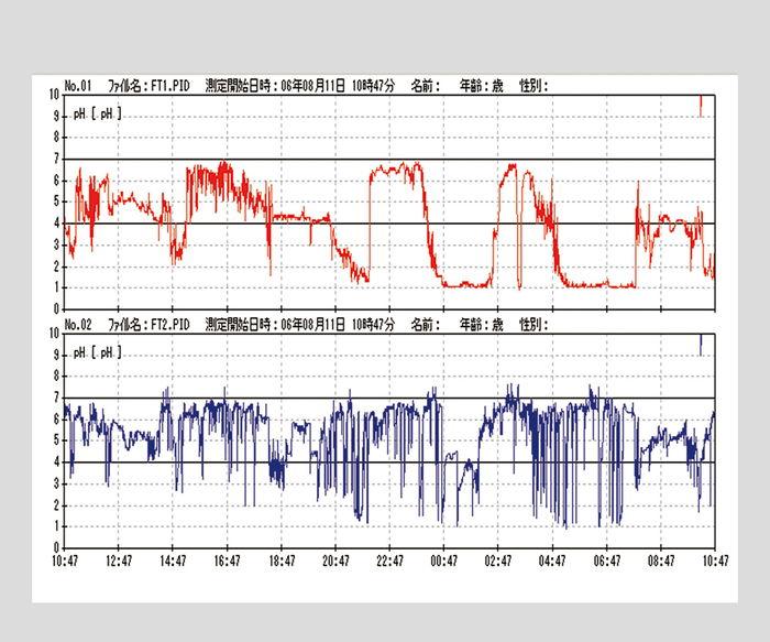 特殊pH電極W-ICPIver.2.3【02P06Aug16】